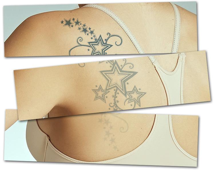 borrado de tatuajes